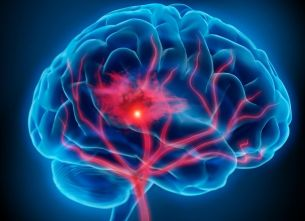 Non-invasive electrical stimulation alters blood flow in brain tumors